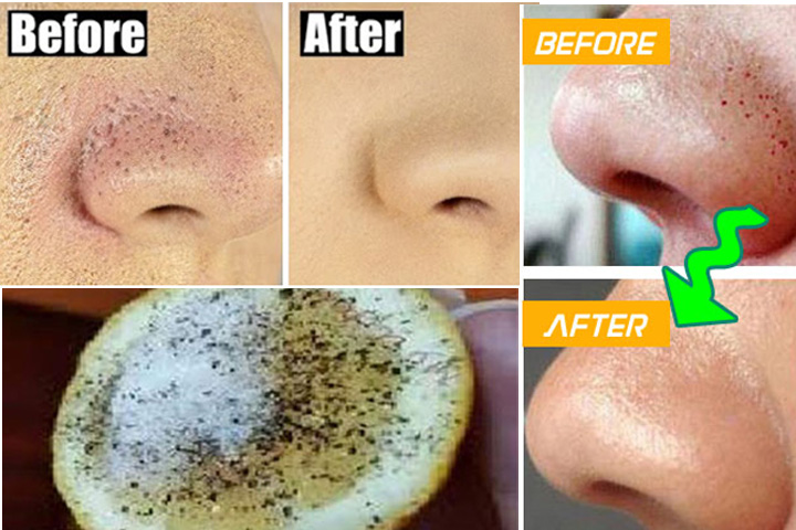 How to remove blackheads from nose using lemon